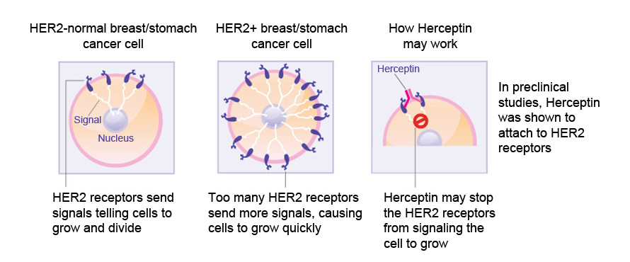 A diagram showing how Herceptin may work on breast or stomach cancer cells. HER2 receptors send signals that tell a cell to grow and divide; too many HER2 receptors cause breast or stomach cancer cells to grow too quickly. In preclincial studies, Herceptin was shown to attach to HER2 receptors, which may stop the receptors from signalling the cell to grow.
